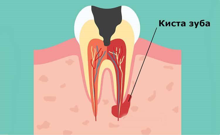 кистозное образование зуба