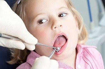 эпулис у ребенка