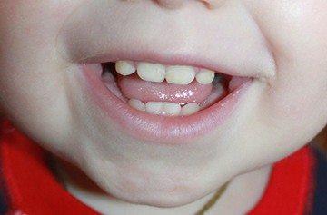 зубной налет у детей