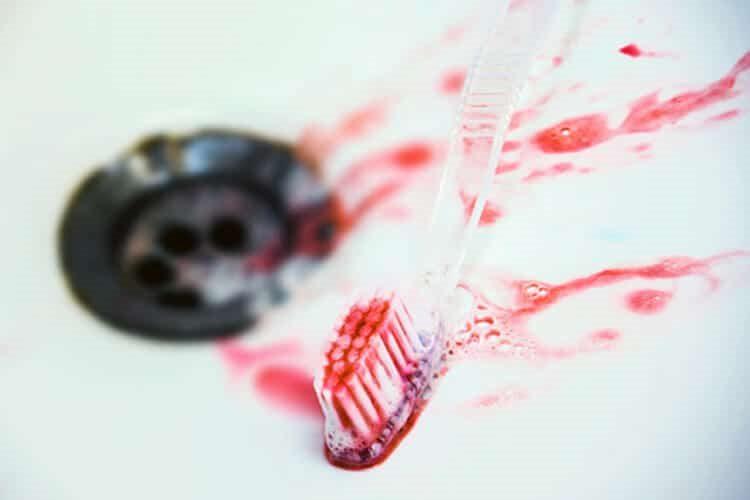 зубы кровоточат
