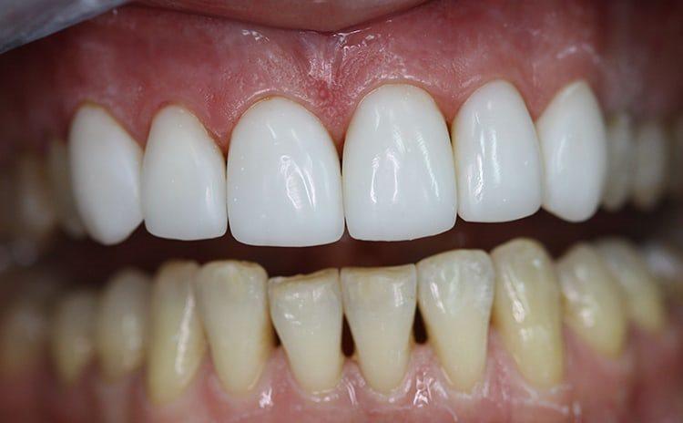 виниры на верхних зубах