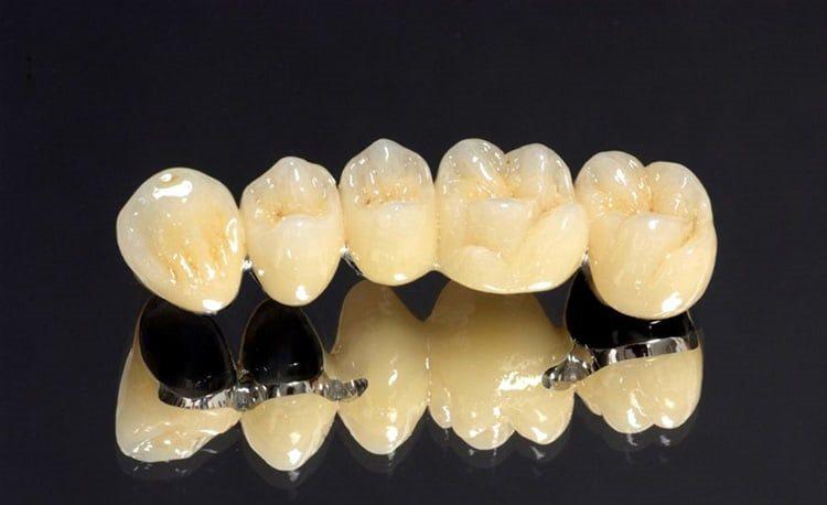 коронки зубные керамика