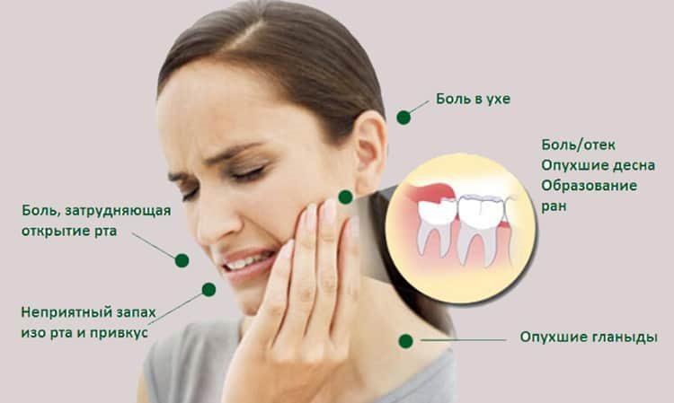 симптомы воспаленного зуба