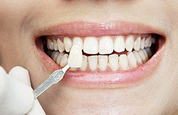 установка пластин на зубы