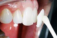 накладные виниры без обточки зуба