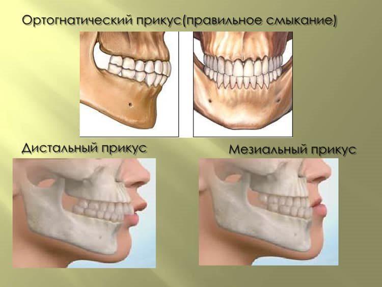 виды смыкания зубов
