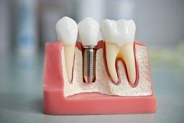 зуб на штифте