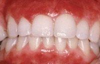 болезнь катарального гингивита