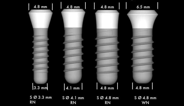 размеры зубных имплантов