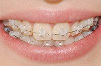 брекеты in ovation на зубах пациента