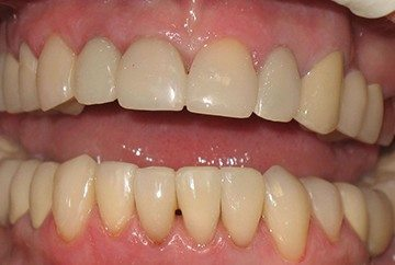 коррекция передней части зубов