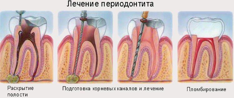 лечение воспаления тканей зубов и десен