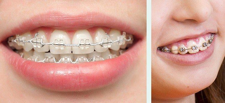 брекеты на наружной части зубов