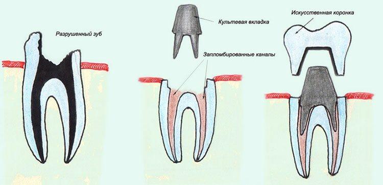 метод восстановления зуба