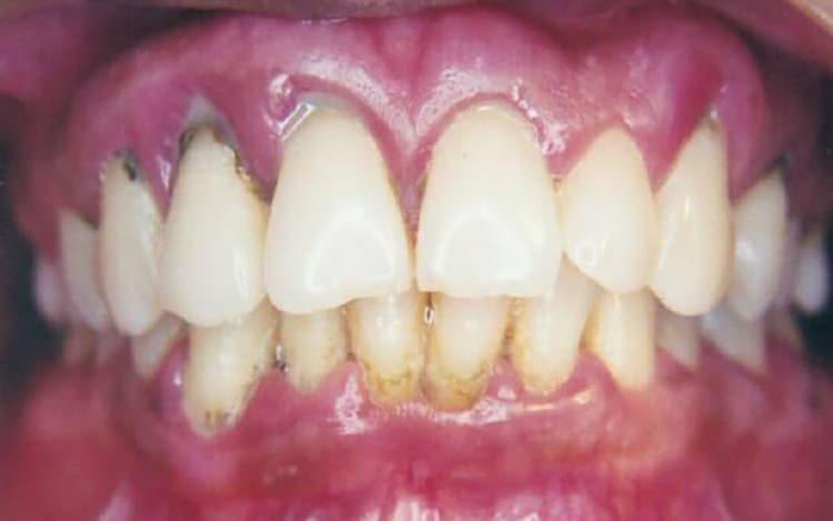 больные зубы и ошеек гингивита