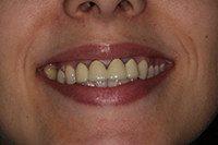 коронки на передних зубах