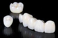 готовые зубные коронки