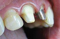 коронка и сточенный зуб