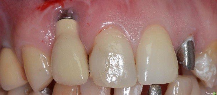 имплантированный зуб