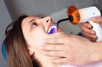 пломбирование зуба и его канала