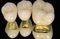 этапы производства коронок для зубов