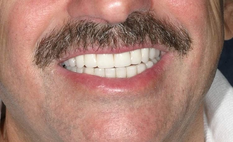 пример работы над передними зубами