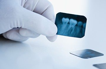 повторный рентген зуба