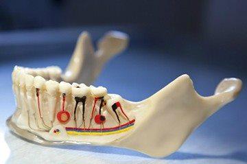 макет челюсти с периодонтитом