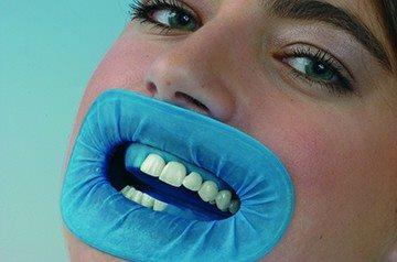коффердам на зубы