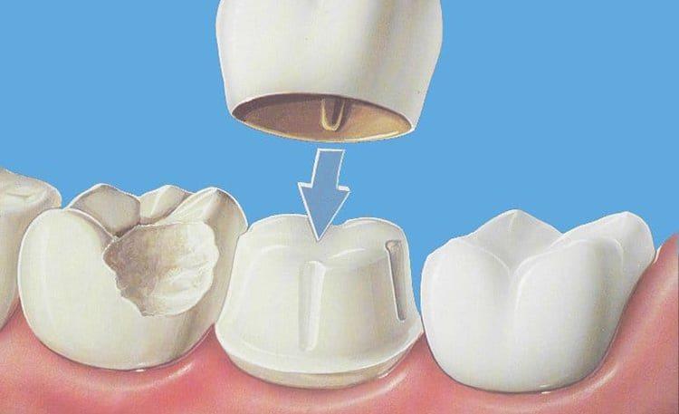 установка керамики на зубы
