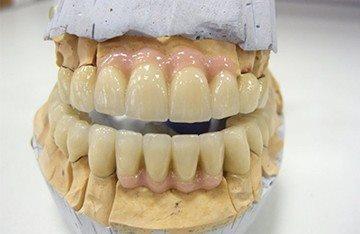 керамика повторяет цвет зубов