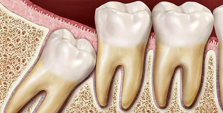 воспаление капюшона зуба
