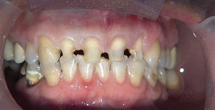 зубы под виниры