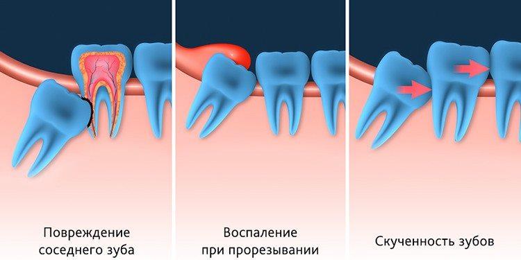 неправильный рост зубов мудрости