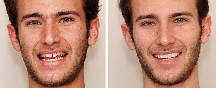 реставрация зубов - до и после