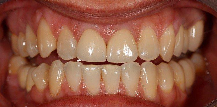 виниры зубные