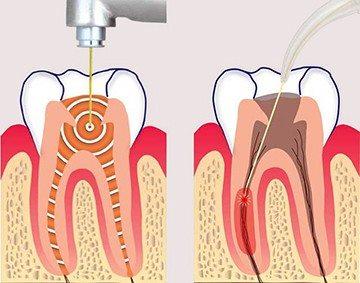 чистка канала зуба лазером