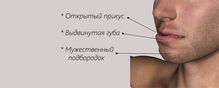 прикус с выдвижением челюсти вперед