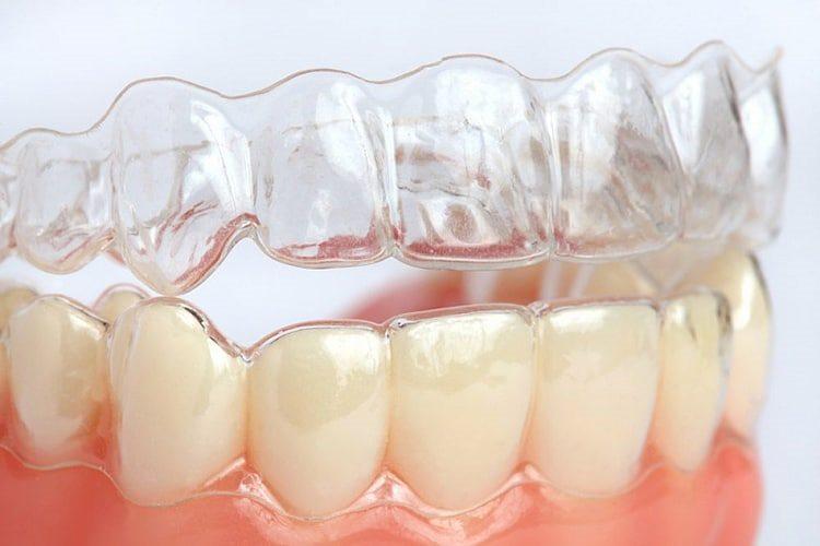 капы стоматологические