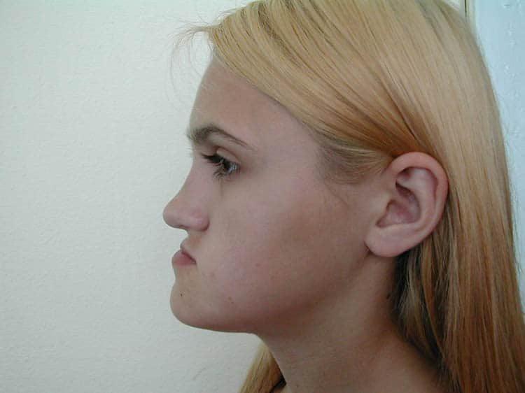 смещение челюсти