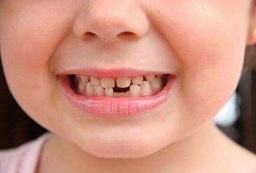 болезни зубов у малышей