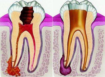 воспалительный процесс в зубе