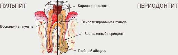 воспаление тканей зуба