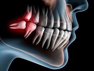 непрорезавшиеся зубы