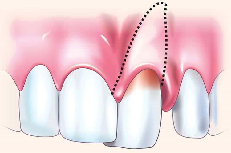 подвывих и вывих зуба