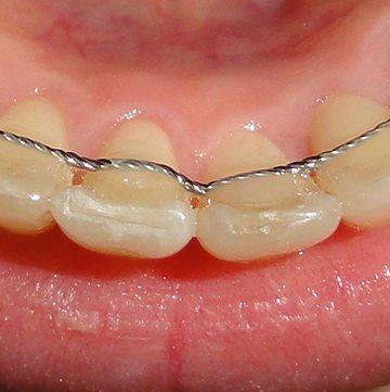 крепление на зубы