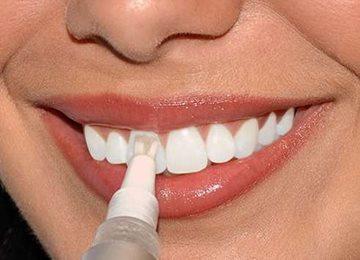 осветление эмали зубов
