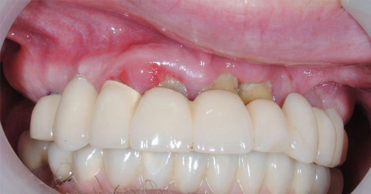 имплантированные зубы не прижились