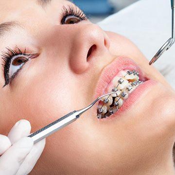 процесс установки ортодонтической системы