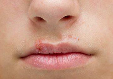 у ребенка простуда на губах